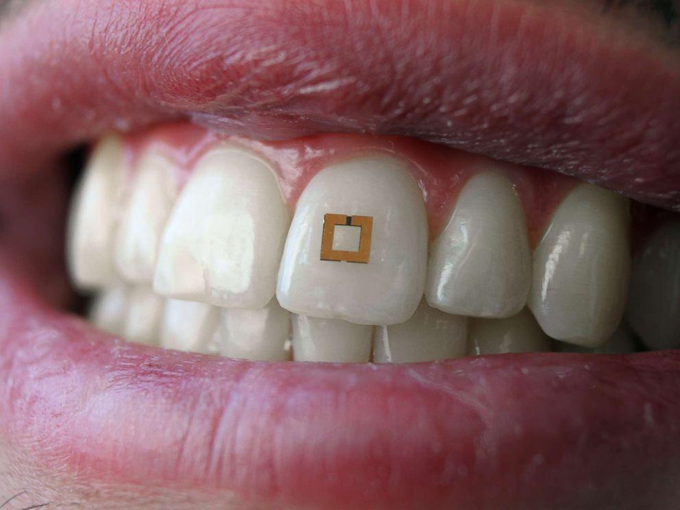 Tooth Sensor